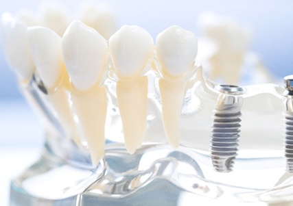 Man smiling in dental chair looking at chairside mirror